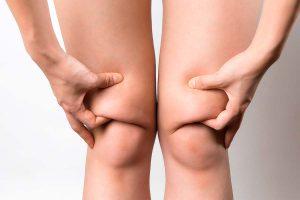 grasa en las rodillas