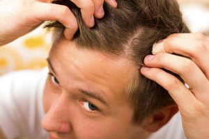 alopecia juvenil