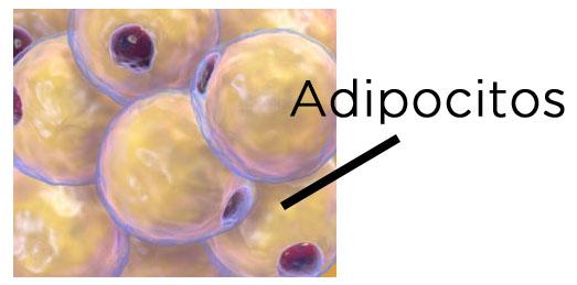piel de naranja adipocitos