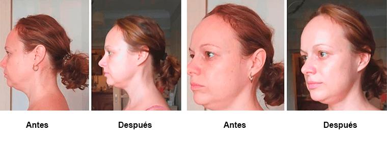 Drenaje linfático facial, antes y después