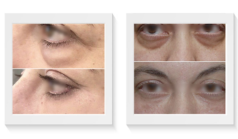relleno de ojeras antes y después eliminar ojeras