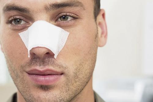 Postoperatorio cirugía de la nariz en hombres