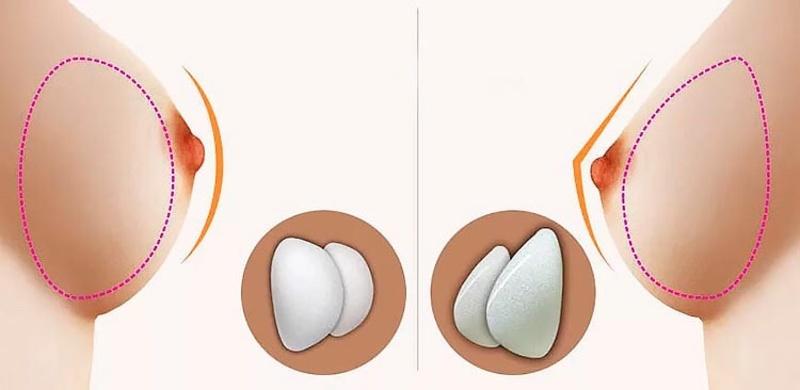 Prótesis anatómicas o redondas