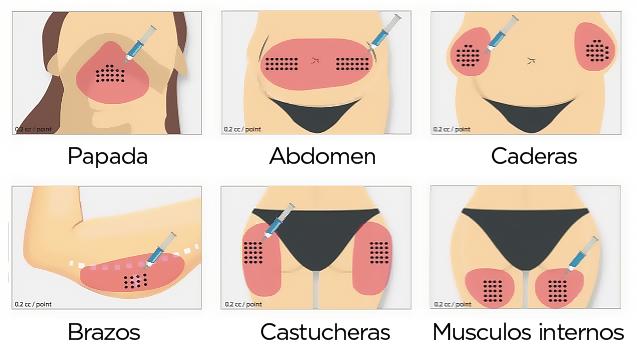 zonas de tratamiento intralipoterapia
