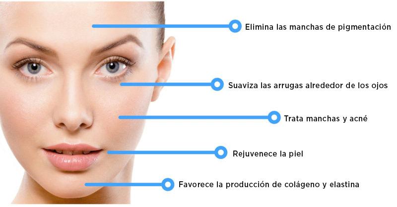 beneficios mesoterapia facial
