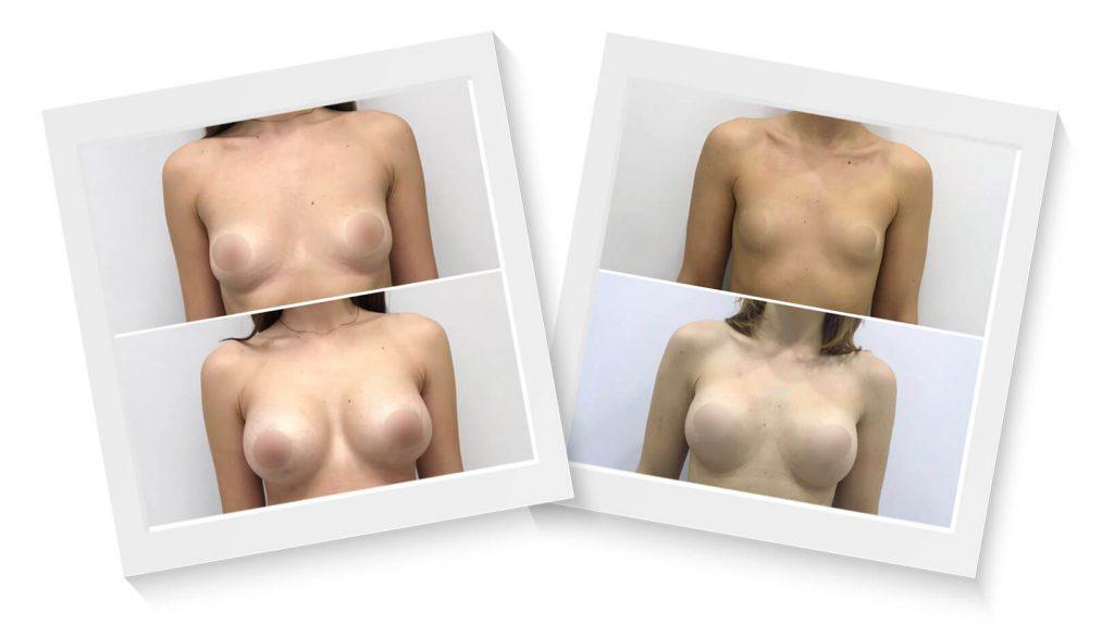 antes-despues-aumento senos