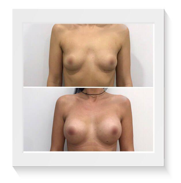 antes despues cirugia mamaria