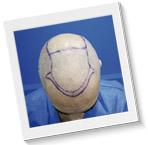antes y despues trasplante capilar