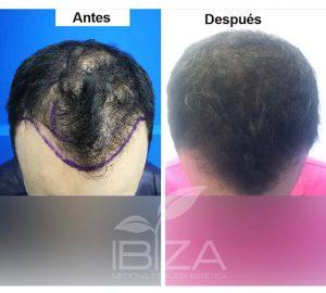 evolución injerto de pelo