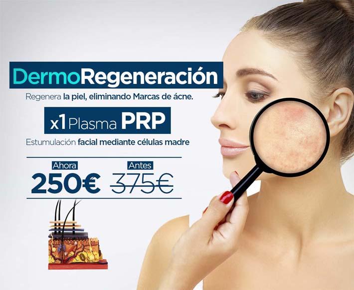 dermoregeneracion-1