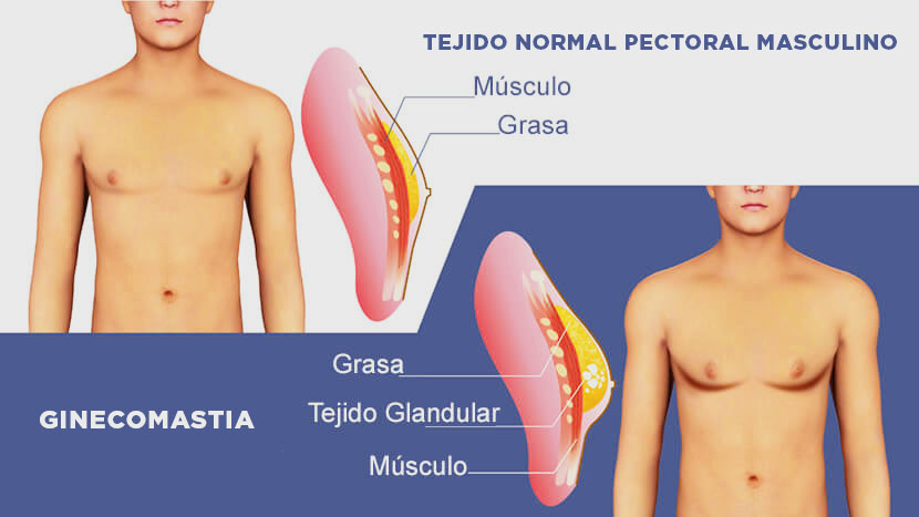 Ginecomastia madrid