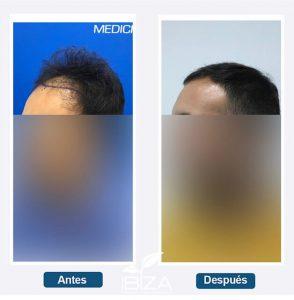 trasplante de pelo antes y después