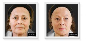 ellanse antes y después