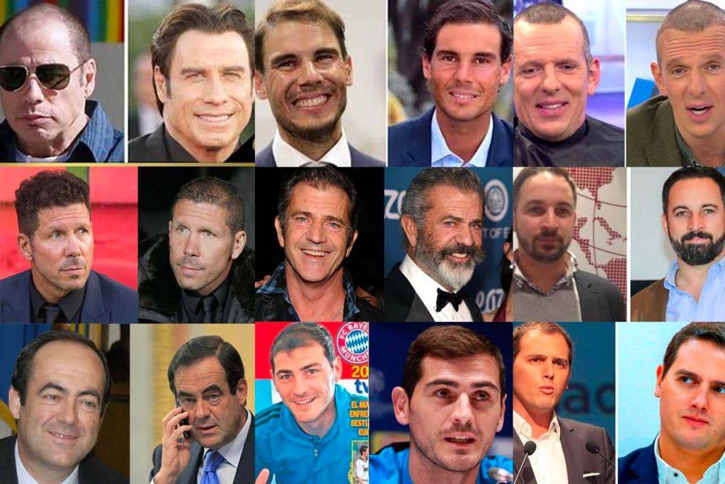 famosos que se han hecho injerto capilar