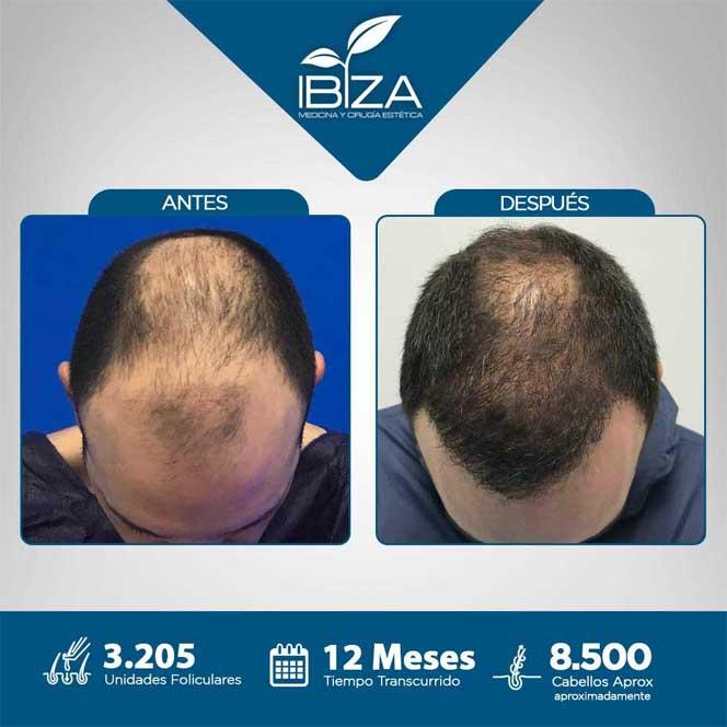 trasplante capilar antes y después 5 meses