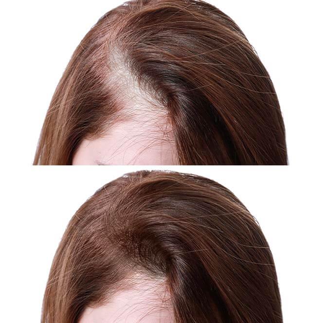 antes y después