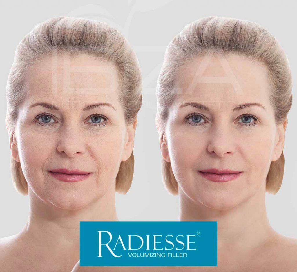 radi-10-radiese-radies-2.jpg