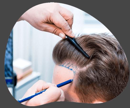 tratamiento mesoterapia capilar
